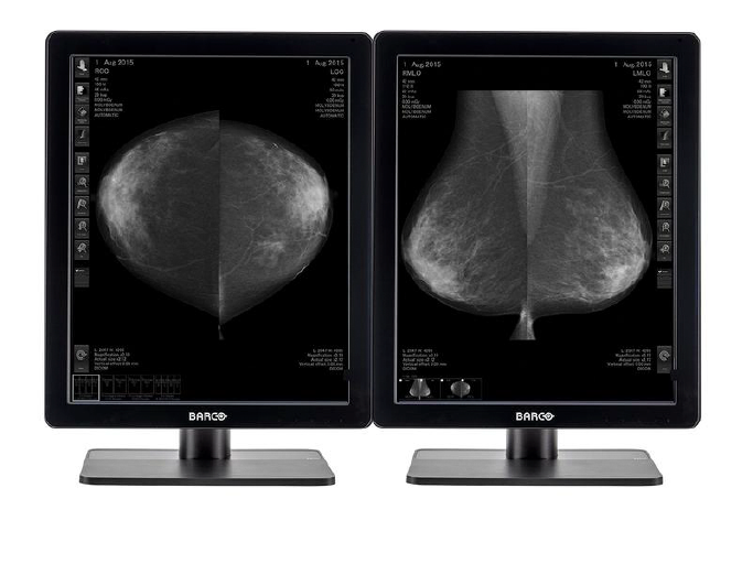 Radio imaging of female patient breast cancer diagnosis is displayed on the two Barco Monitors